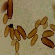 Cladosporium, häufiger Wandschimmel